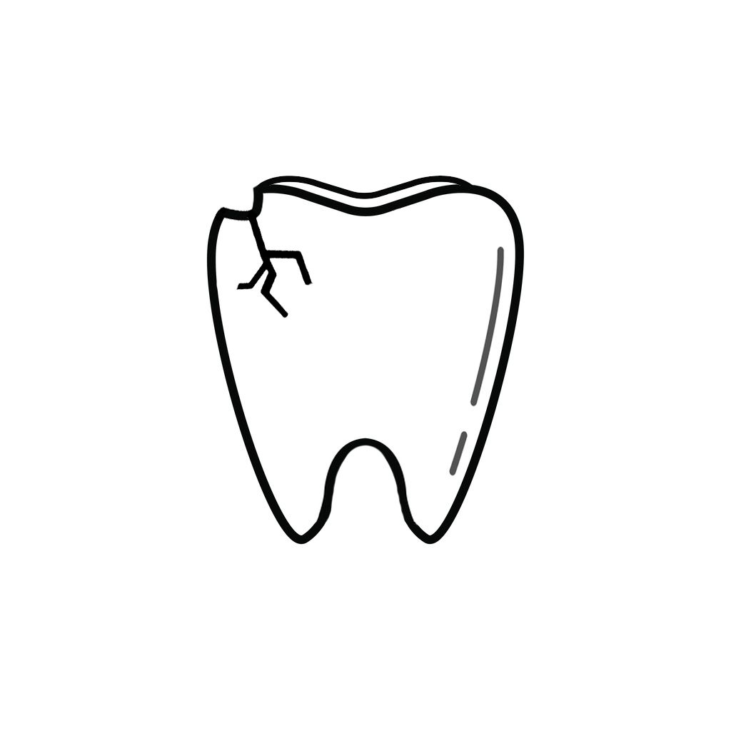 Restorative Dentist Near Me | I Chipped a Tooth! What Can I Do?